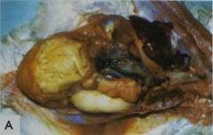Таорожные массы, заполняющие яйцевод у взрослой курицы-несушки -характерный признак сальпингита, вызыванного коли инфекцией