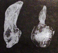 Мышечные и железистые желудки у кур-бройлеров