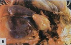 Воспаление воздушного мешка у 20-дневного цыпленка-бройлера
